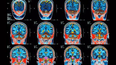 تصویر از بیماری مرموز مغزی که باعث توهم و خرد شدن دندان میشود ۴۳ نفر را در نیوبرانزویک درگیر کرد