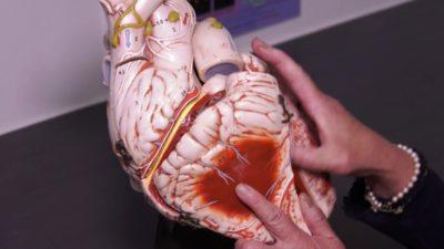 بیمارستان دانشگاهی مک گیل روی بیماران کرونایی که چندین ماه علائم بیماری داشتند تحقیق میکند